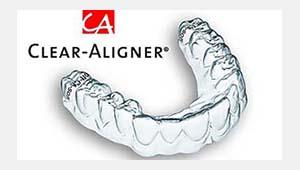 Jetzt NEU Clear-Aligner